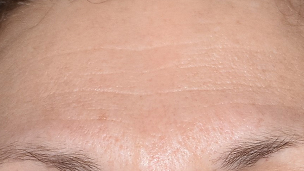 After-Anti-Wrinkle