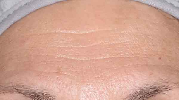 Before-Anti-Wrinkle